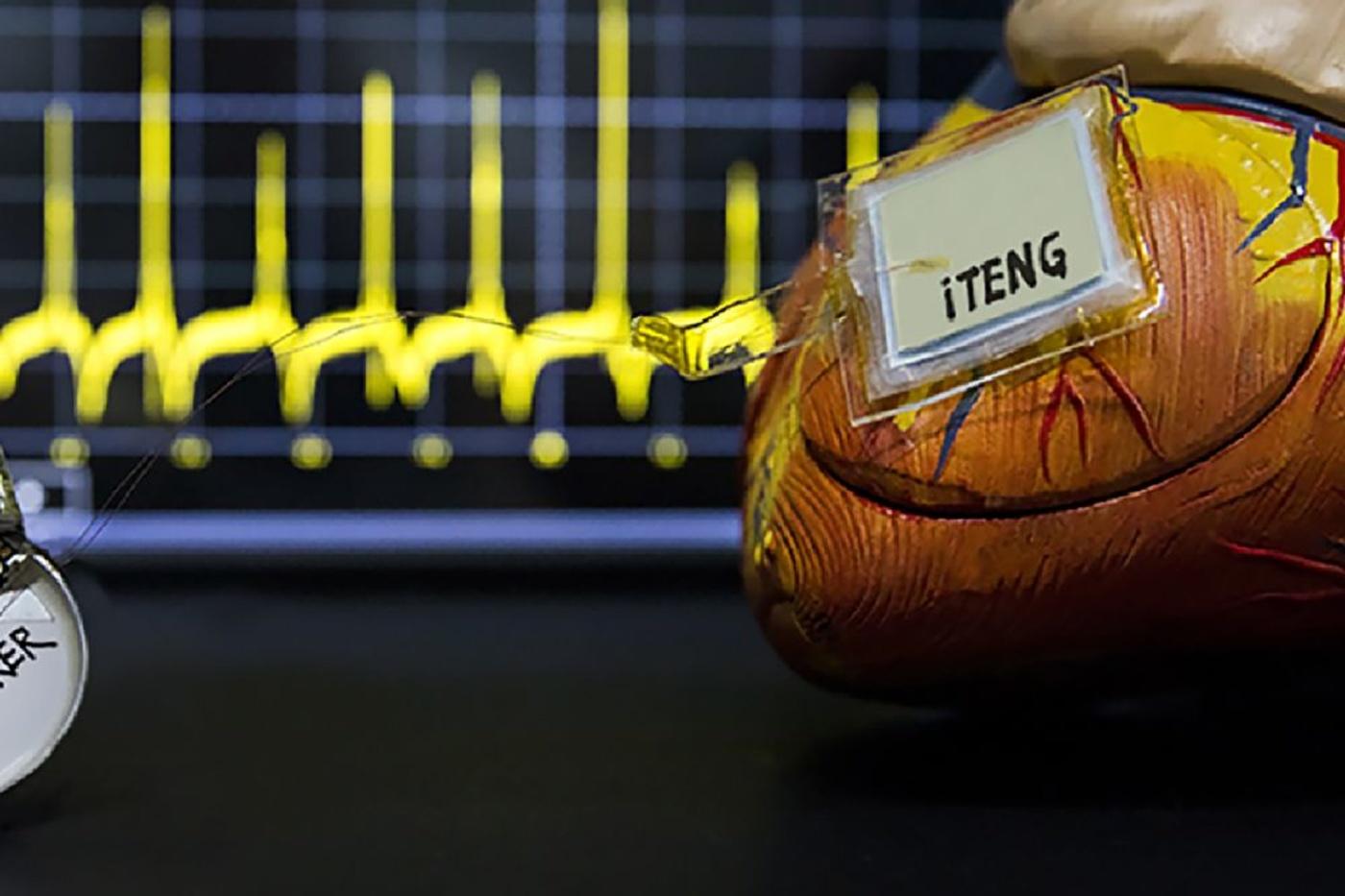 Photo fournie par le service presse de la revue Nature. Elle montre le stimulateur cardiaque symbiotique (dispositif sans pile), capable de générer sa propre énergie à partir des battements du coeur pour alimenter un stimulateur cardiaque. Le dispositif implantable, qui a été démontré chez des porcs adultes, était également capable de corriger l'arythmie sinusale, AFP