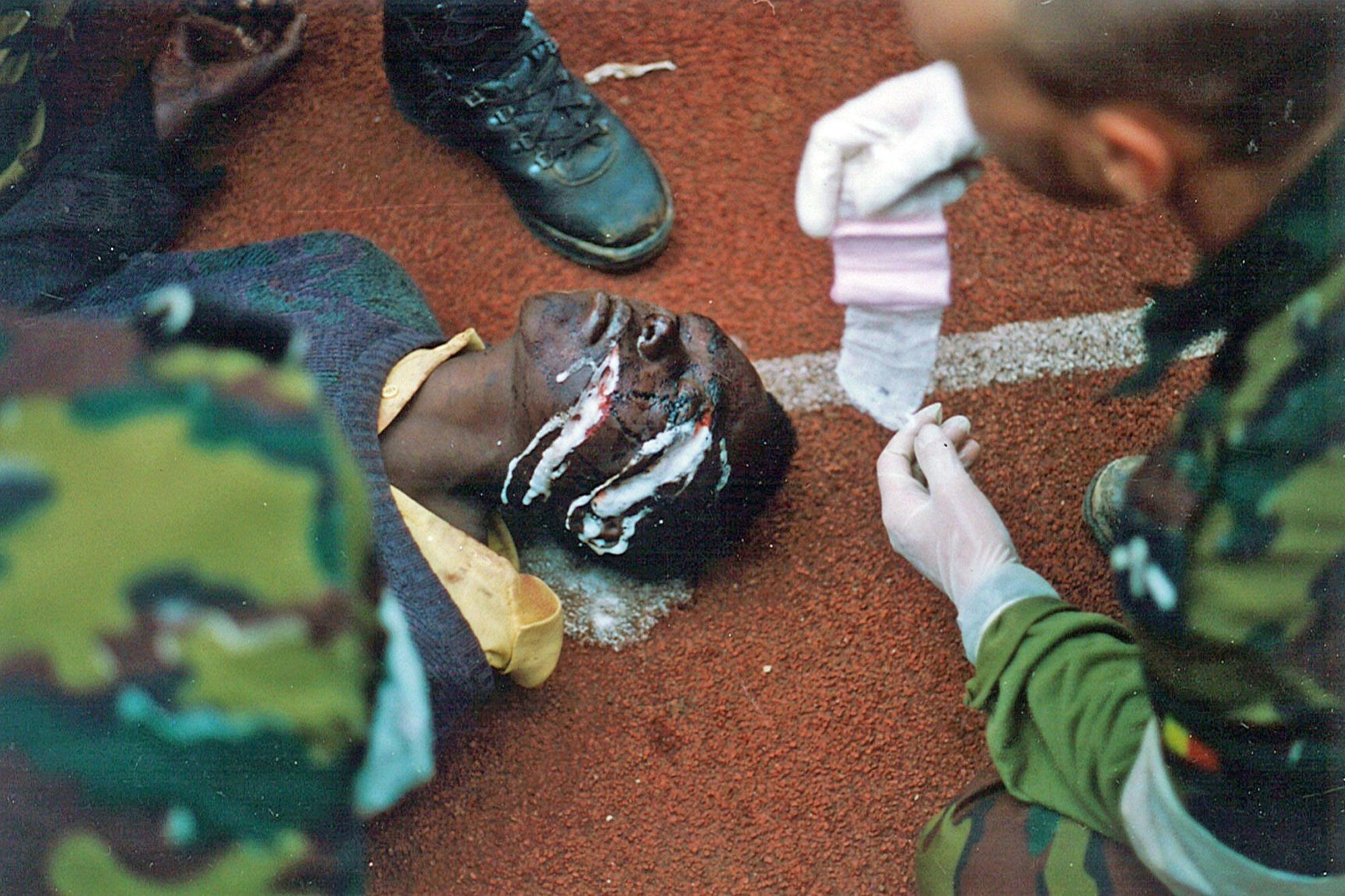 Premiers soins à une victime de miliciens génocidaires., JM Bouju
