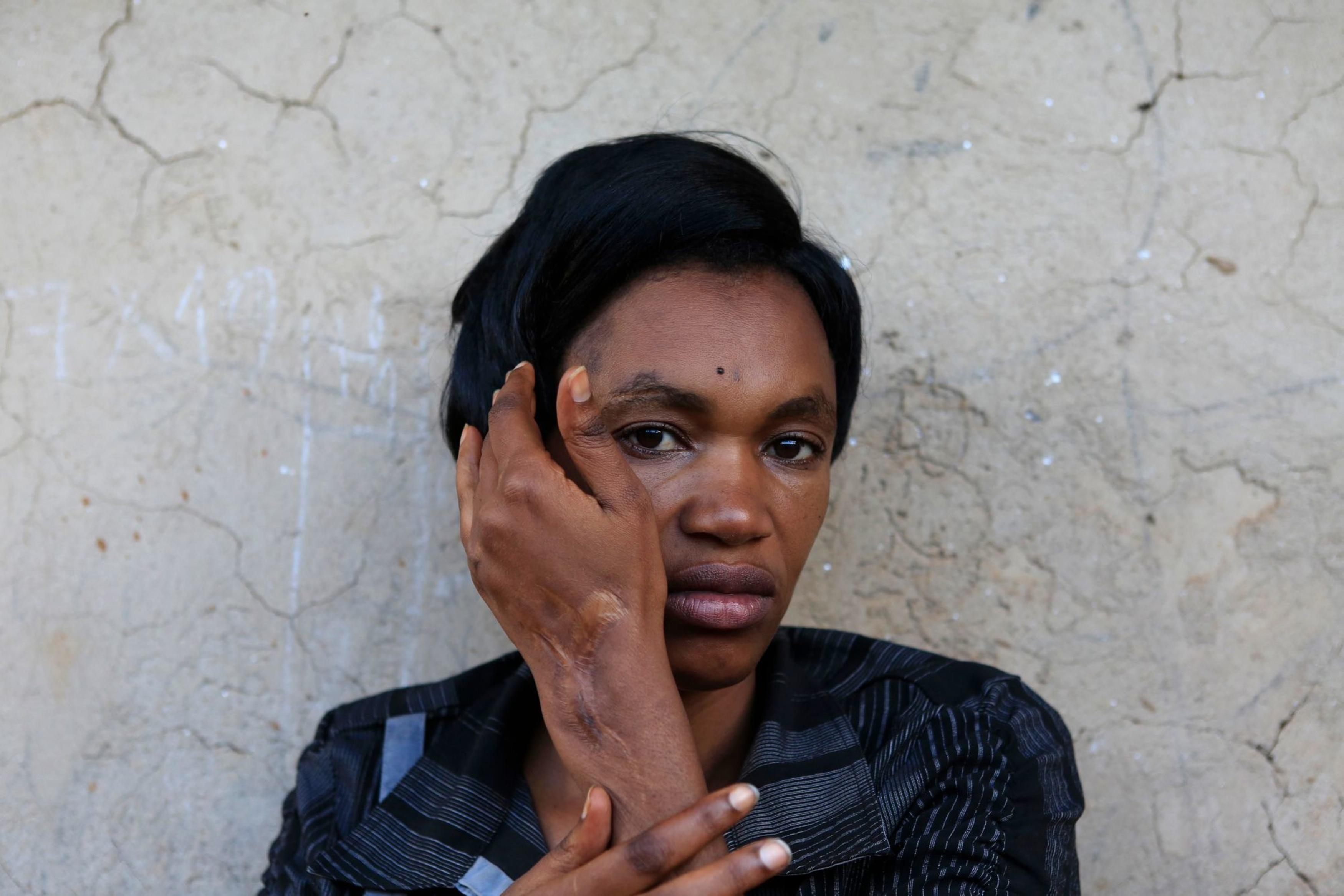 Ernestine Mudahogora (34) is een van de overlevende slachtoffers van de genocide, Kigali, 3 april 2014., Reuters