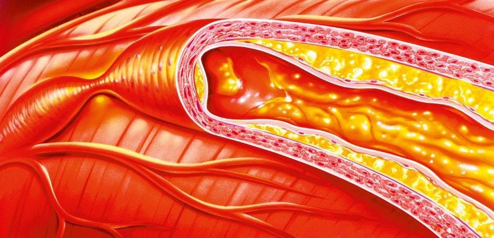 Cholesterol Rodegistrijst kan ernstige bijwerkingen hebben, GETTY IMAGES